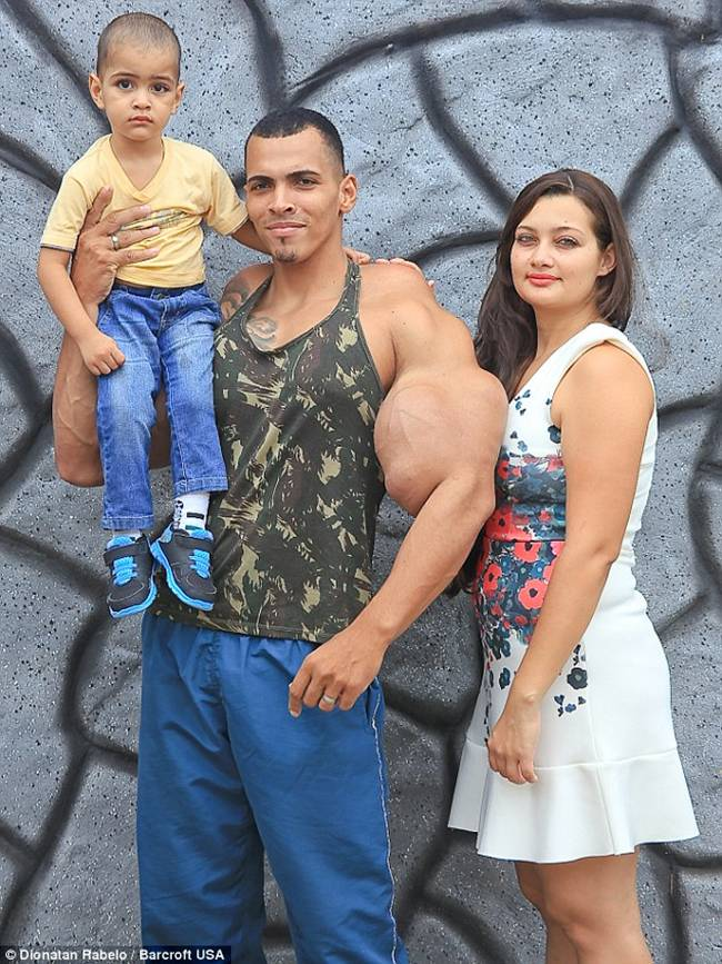 Romario-Dos-Santos-Alves-injecting-oil-and-alcohol-into-his-biceps-06