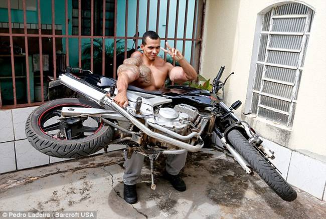 Romario-Dos-Santos-Alves-injecting-oil-and-alcohol-into-his-biceps-07