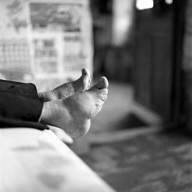 Chinese women have experienced the painful procedure of foot-binding