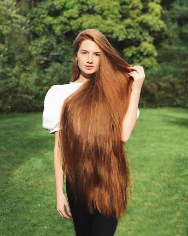 Anastasiya Sidorova Struggling With Baldness To The Owner Of A