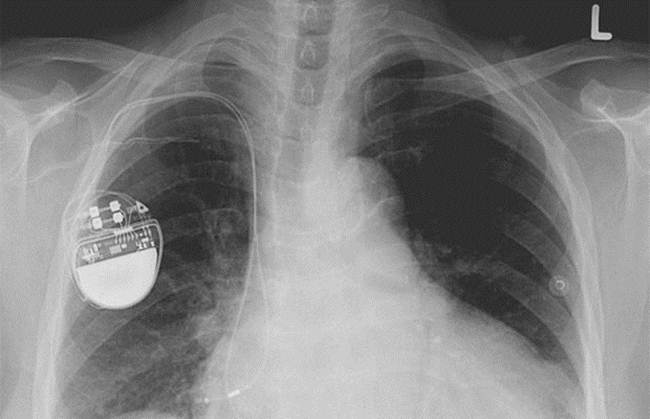 06-Pacemaker