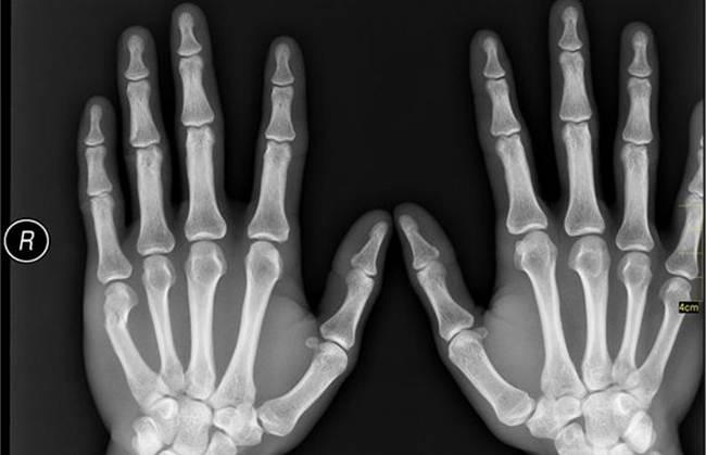 10-X-ray